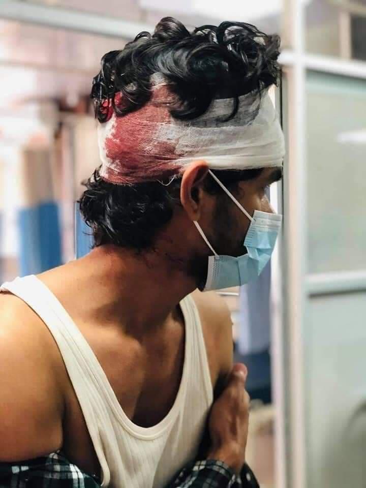 अखिल क्रान्तिकारीले रामपुर क्याम्पसमा नेविसंघका ४ विद्यार्थीको टाउको फुटाए